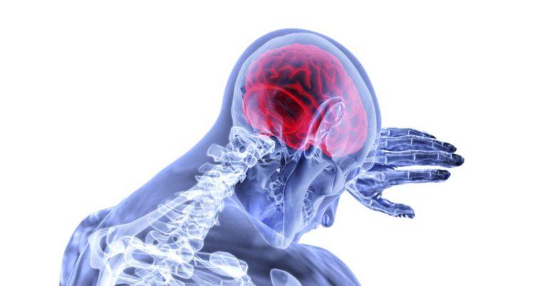 encefalita neuroaxis