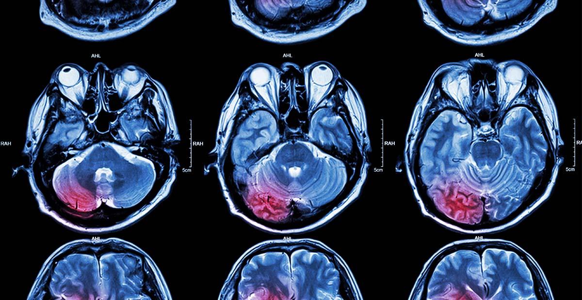 Cele mai periculoase tumori cerebrale si cum ne ferim de ele