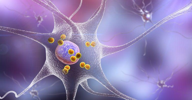 dementa-cu-corpi-lewy-neuron-3d
