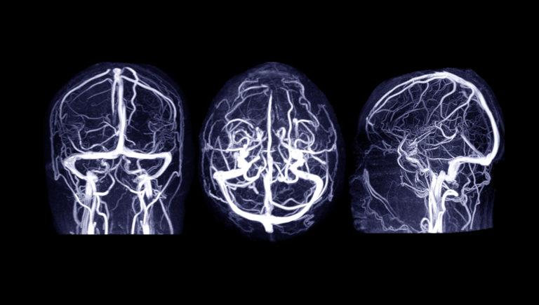 Afectiuni si tratamente T Tromboza venoasa cerebrala