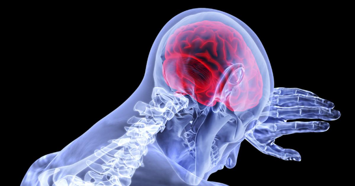 Doctorul zilei: Cât de periculoasă poate fi durerea de cap! Când e cazul să mergi la urgență, atenție la aceste simptome