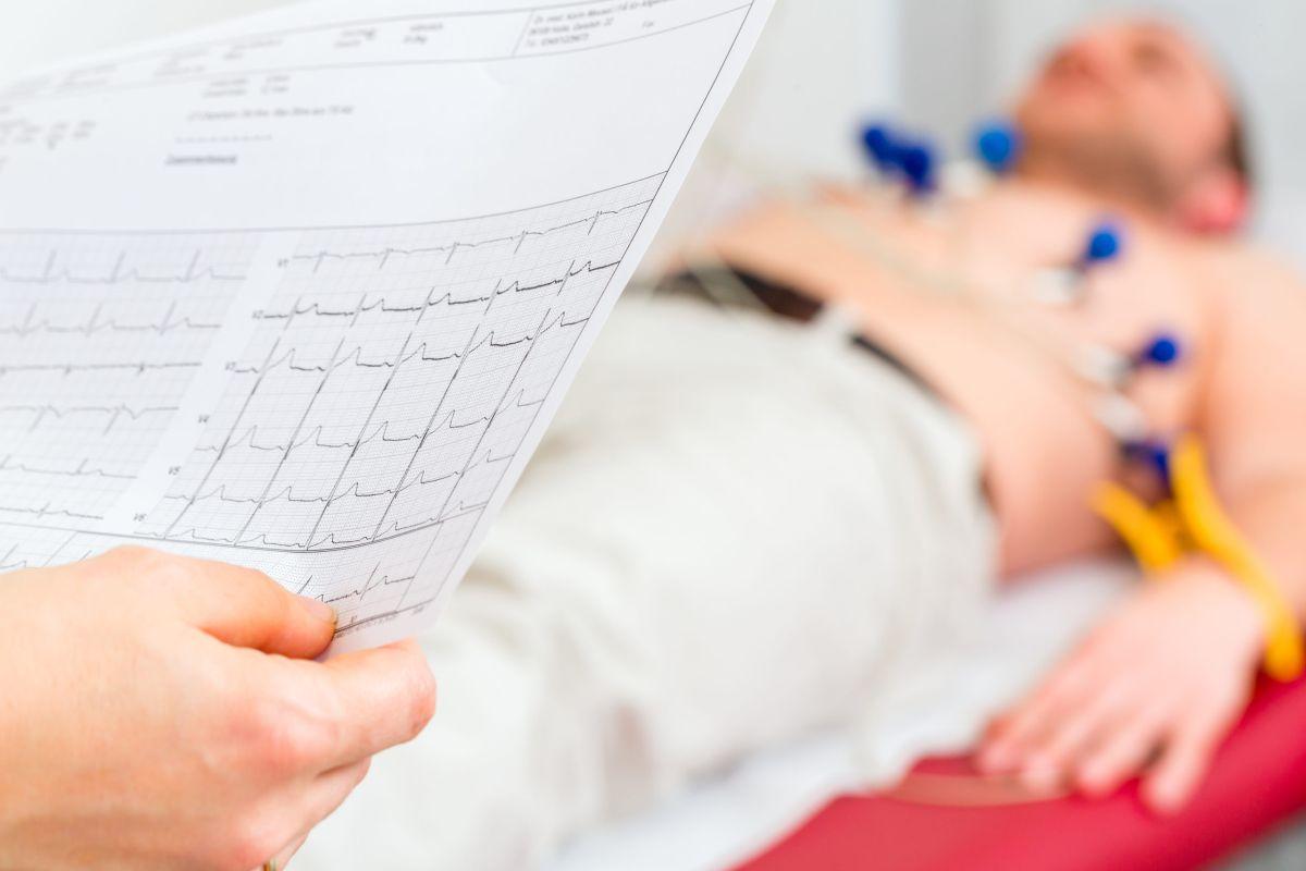 Electrocardiograma – EKG