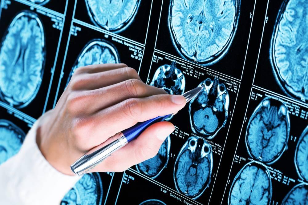 Consultatii Neurochirurgie