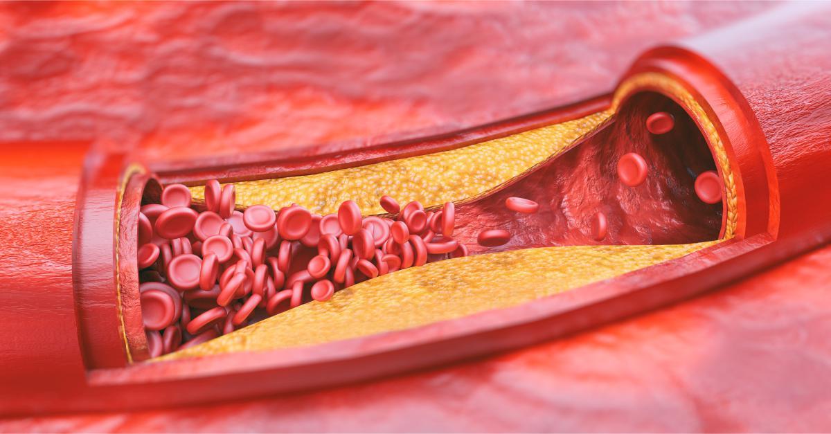 tratament articular de ateroscleroză