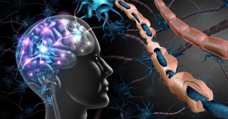scleroza -in-placi