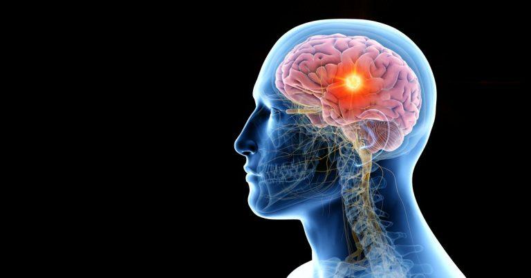 simptome neurologice asociate noului coronavirus