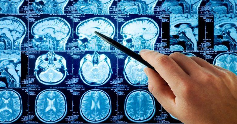 ateroscleroza-cerebrala