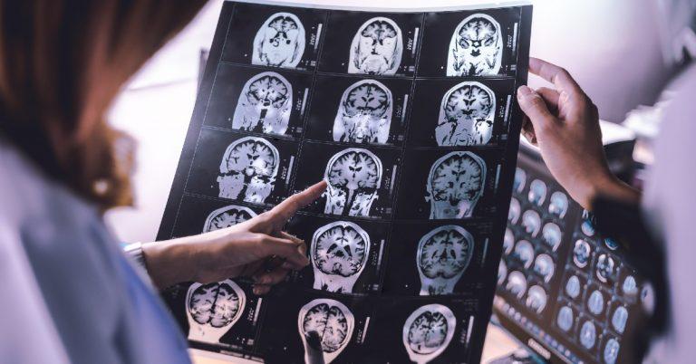 atrofie-cerebrala- imagistica